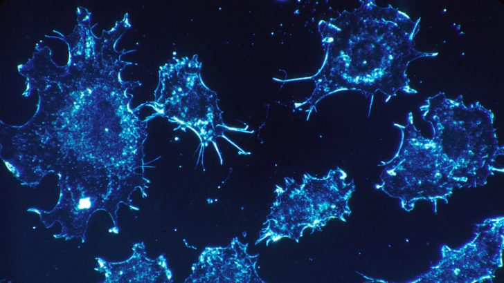 Cancer cells Image credit Pixabay/Skeeze