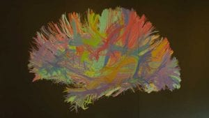 Is neurodiversity the solution to your cybersecurity skills deficit? (Image Credit: Ian Murphy)